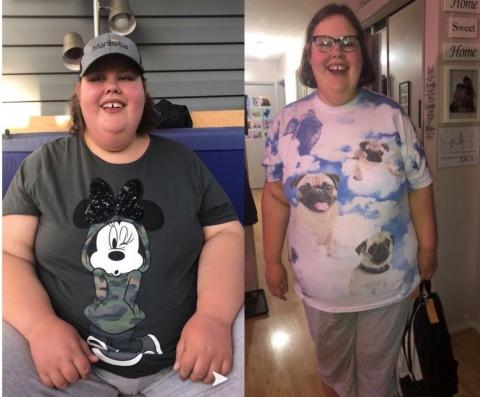 Christine Hoffman before and after weight loss photos side by side.